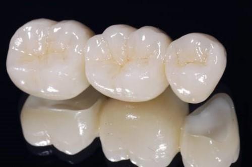 Răng Toàn Sứ Cercon Zirconia