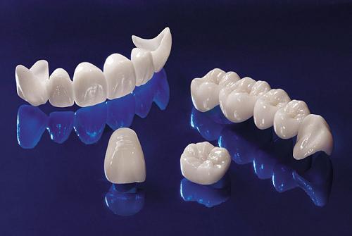 răng toàn sứ cercon zirconia giá bao nhiêu -3