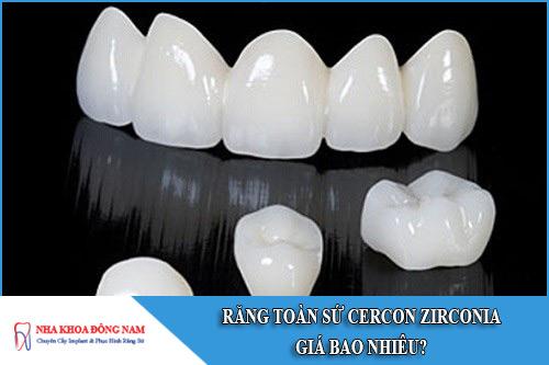 răng toàn sứ cercon zirconia giá bao nhiêu