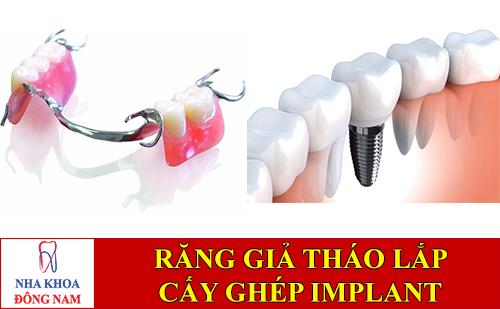 sanh sánh răng giả tháo lắp và cấy ghép implant -1
