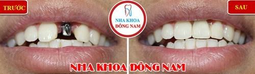 So sánh răng giả tháo lắp và cấy ghép implant 10