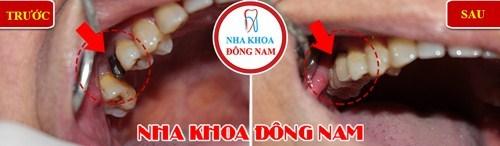So sánh răng giả tháo lắp và cấy ghép implant 11