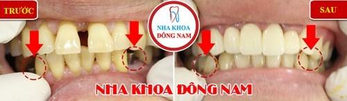 So sánh răng giả tháo lắp và cấy ghép implant 12
