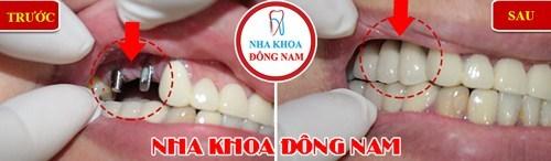So sánh răng giả tháo lắp và cấy ghép implant 13