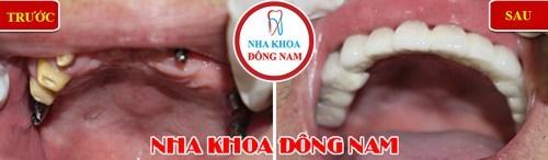 So sánh răng giả tháo lắp và cấy ghép implant 14