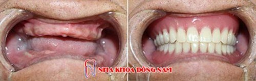 So sánh răng giả tháo lắp và cấy ghép implant 2