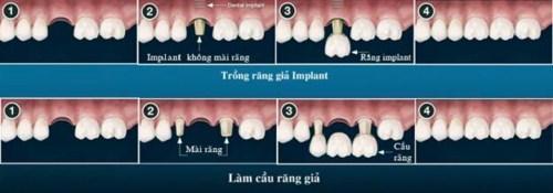 So sánh răng giả tháo lắp và cấy ghép implant 6