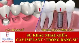 sự khác nhau giữa cấy ghép implant và trồng răng sứ -1