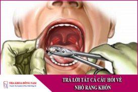 trả lời tất cả các câu hỏi về nhổ răng khôn