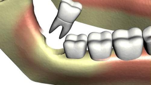 Image result for Vì sao phần lớn răng khôn phải nhổ bỏ?