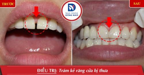 trám răng thẩm mỹ cho răng thưa
