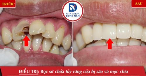 chữa tủy bọc sứ cho răng sâu hư tổn