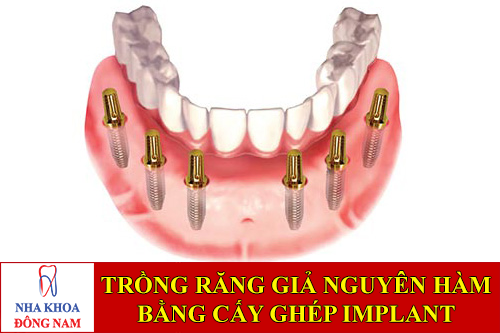 trồng răng giả nguyên hàm bằng cấy ghép implant -1