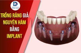 Trồng Răng Giả Nguyên Hàm Bằng Implant