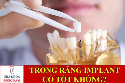 trồng răng implant có tốt không -1