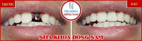 Trồng răng Implant có tốt không trường hợp 2