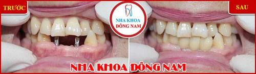 Trồng răng Implant có tốt không trường hợp 3