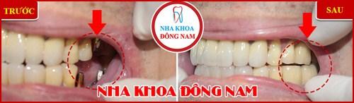Trồng răng Implant có tốt không trường hợp 4