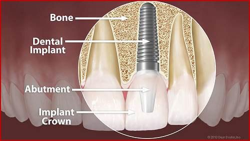 Trồng răng Implant có tốt không 7