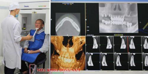 chụp ct kiểm tra tình trạng răng