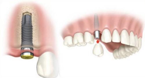 trụ implant được đặt trong xương hàm