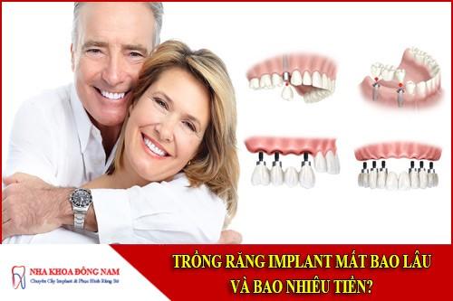 trồng răng implant mất bao lâu và bao nhiêu tiền