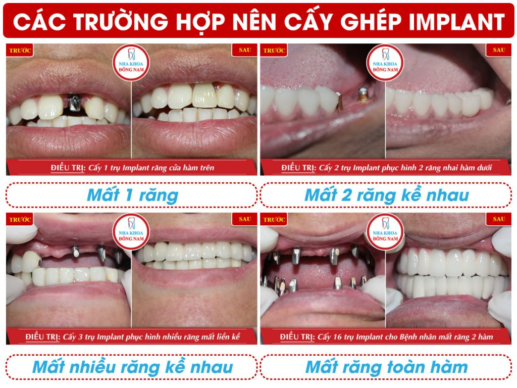 Trường hợp cấy ghép răng Implant tại nha khoa Đông Nam