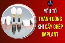 Yếu tố ảnh hưởng đến sự thành công cấy ghép Implant
