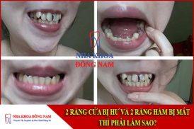2 răng cửa bị hư và 2 răng hàm bị mất thì phải làm sao