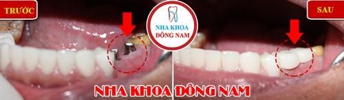 cấy ghép implant 2 răng hàm dưới