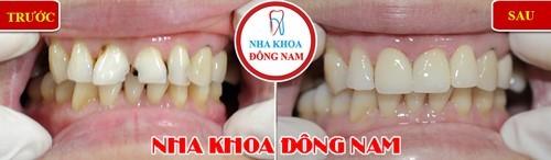 bọc sứ cho răng cửa bị hư