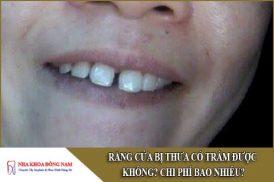 răng cửa bị thưa có trám được không và bao nhiêu tiền