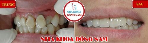 bọc sứ cho răng cửa hàm trên bị thụt vào trong