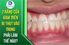 2 răng cửa hàm trên bị thụt vào trong phải làm thế nào