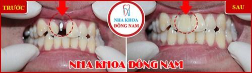 Cách chăm sóc răng implant sau khi cấy ghép12