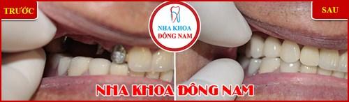 Cách Chăm Sóc Răng IMPLANT Sau Khi Cấy Ghép 15