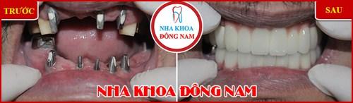 Cách Chăm Sóc Răng IMPLANT Sau Khi Cấy Ghép 18