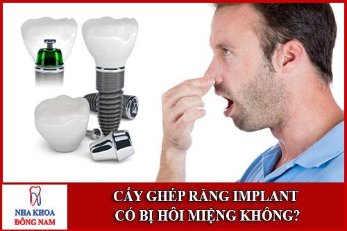 Cấy ghép Răng Implant có bị hôi miệng không