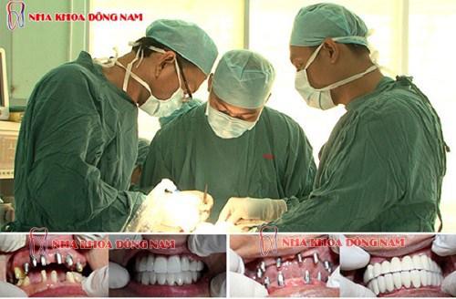 Implant Nobel Active lên răng liền1