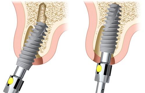 Implant Nobel Active lên răng liền 3
