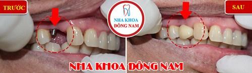 Implant Nobel Active lên răng liền 5