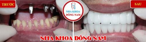 Implant Nobel Active lên răng liền 9