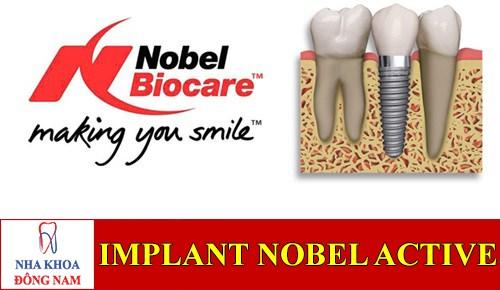 Implant Nobel Active lên răng liền