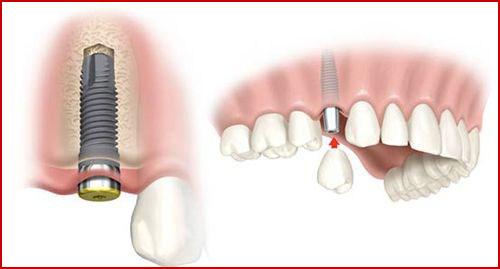 Kỹ thuật cấy ghép răng Implant vào xương hàm