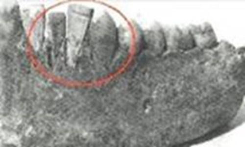 Lịch sử cấy ghép răng Implant trong nha khoa1