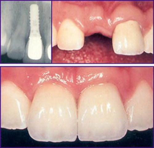 Lịch sử cấy ghép răng Implant trong nha khoa 4