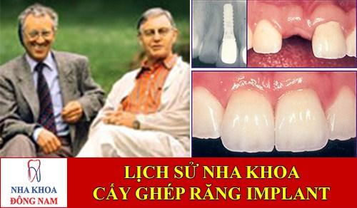 Lịch sử cấy ghép răng Implant trong nha khoa