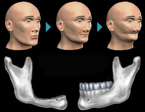 người cao tuổi có trồng răng implant được không 1