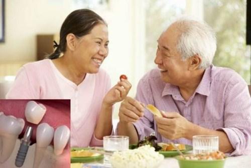 người cao tuổi có trồng răng implant được không 5