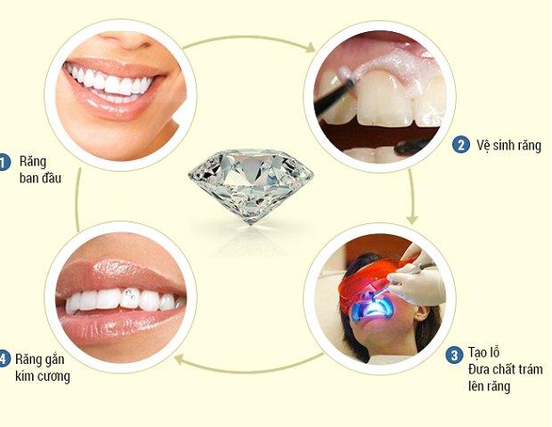 Quy trình gắn đá lên răng